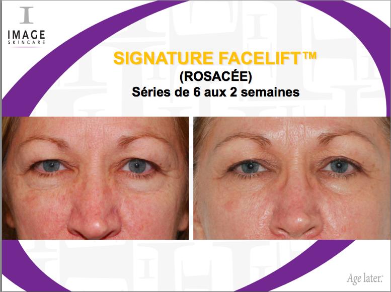 avant-apres Image Skincare