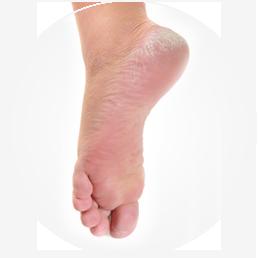 podologie soins des pieds